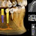 Tumografia Computadorizada 3D