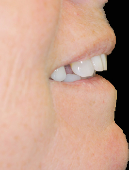 Dental Implants West Palm Beach