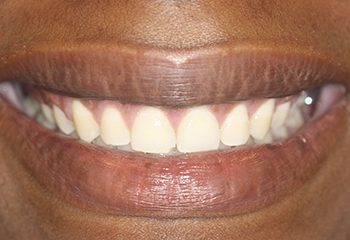 Gummy Smile Surgery Results West Palm Beach