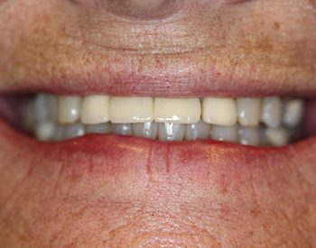 West Palm Beach All-On-4 Dental Implants