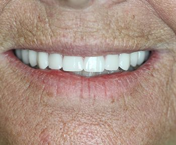 Boynton Beach All-On-4 Dental Implants