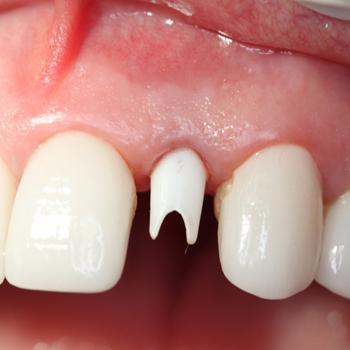 ImplantsPerio