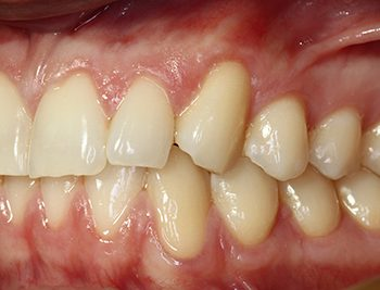 Gum Recession Treatments in Boynton Beach